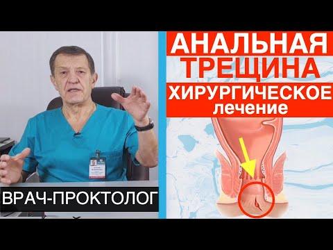 Анальная трещина - хирургическое лечение анальной трещины операция.  Часть 4