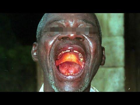 Крымская геморрагическая лихорадка (Крым-Конго) у взрослых