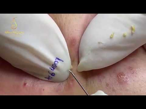 ACNE REMOVAL BLACKHEADS AND Whiteheads (94) | Loan Nguyen