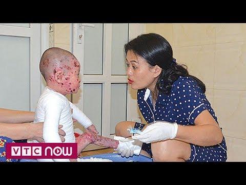 Báo PL&XH: Bệnh nhân tử vong sau khi mổ ruột thừa, người nhà 'bắt đền' bệnh viện
