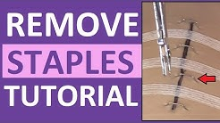 Surgical Staple Removal Nursing | How to Remove Surgical Staples