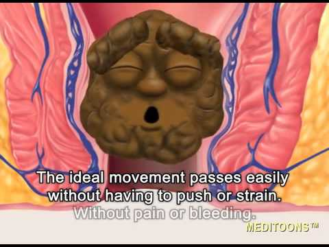 Anal fissure abdominal pain