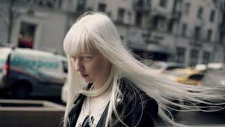 Tanggal 13 Juni merupakan hari kesadaran Albinisme atau Albino dunia. #mjuangchannel #albinismeataua.