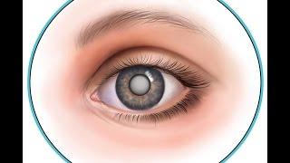 видео Начальная катаракта: симптомы, лечение начальной стадии