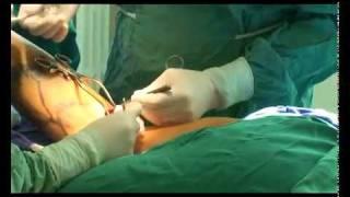 după operație varicoză picior