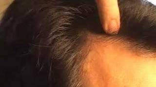 HAIR TRANSPLANT HAIR RESTORATION DALLAS CLOSEUP 2
