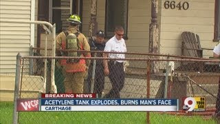 Acetylene tank explodes, burns man