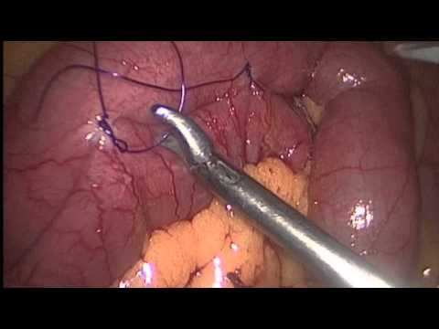 Small Intestine Tumor Resection