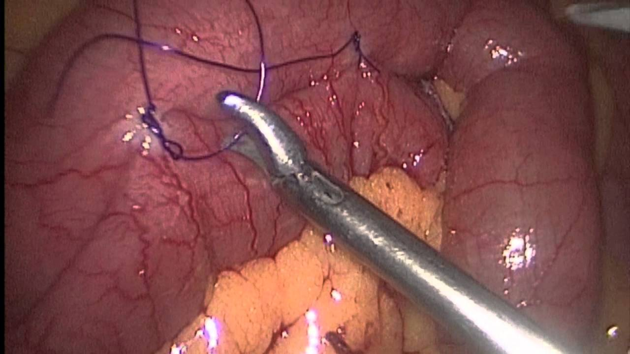 Small Intestine Tumor Resection Youtube