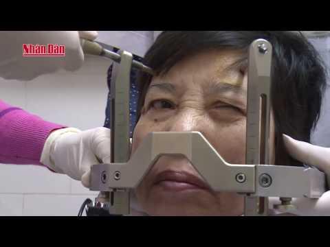 Phóng Sự: Ung thư phổi Nguyên nhân và các biện pháp phòng, tránh