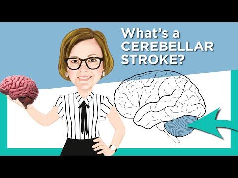 I CARE FOR YOUR BRAIN Facebook LIVE! Cerebellar Stroke Mp3