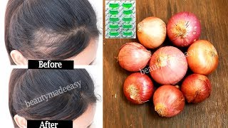 Regrow Your Hair with Onion and Vitamin E | Stop Hair Fall Quickly | 100% working Both Men & Women