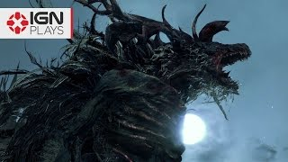 Bloodborne: Slaying the Cleric Beast - IGN Plays