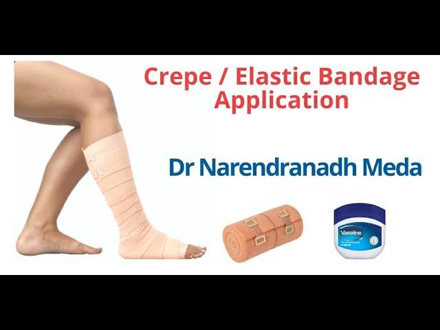 Cum să bandajezi un picior cu vene varicoase cu un bandaj elastic - Simptome
