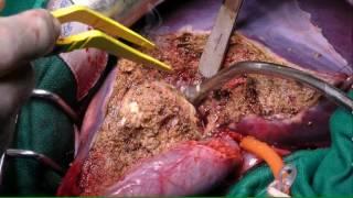 Périkystectomie totale à kyste fermé d'un kyste des segments IV et V