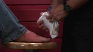 Basic First Aid How Treat Foot Fracture