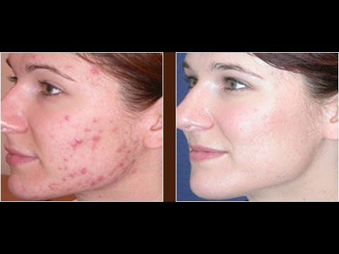 acne-scars-treatment-with-diet-at-home-|-dermatology-secrets