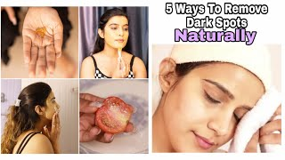 5 Ways To get Clear Skin | Pigmentation Removal In Just 7 Days | 100% Natural | Super Style Tips