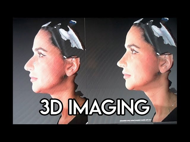 Rhinoplasty 3D Imaging