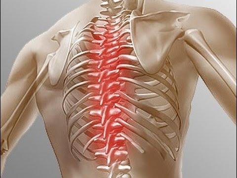 Что болит при остеохондрозе грудном