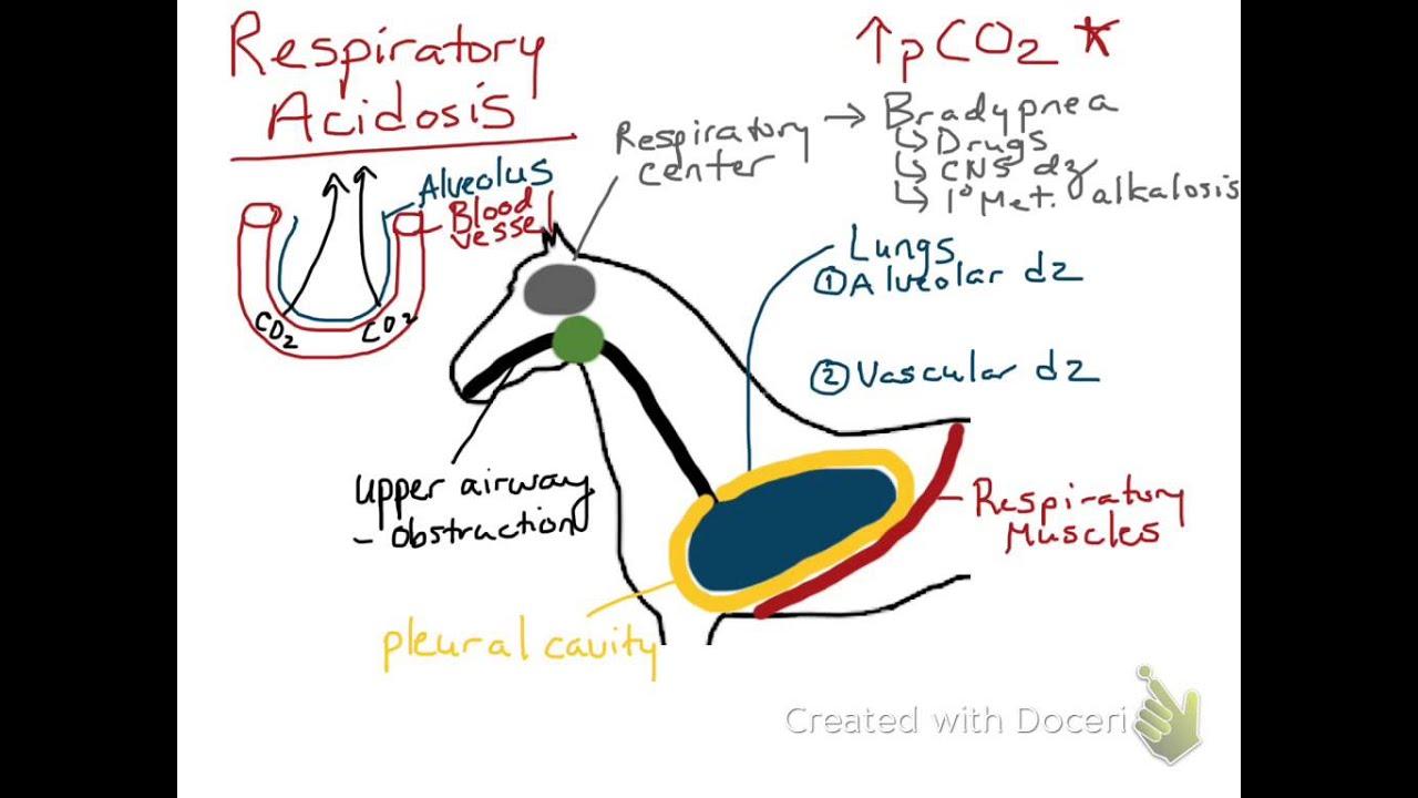 respiratory acidosis - youtube, Skeleton