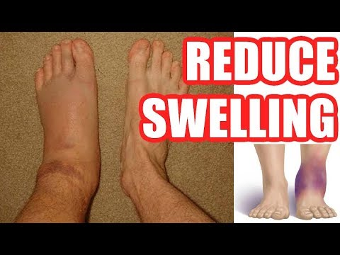How to Reduce Swelling: Make Your Swelling Go Down Easy Methods