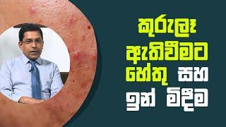 කුරුළෑ හටගැනීමට බලපාන හේතු සහ ඒවාට ඇති පිළියම්   Piyum Vila   01 - 07 - 2021   SiyathaTV Thumbnail