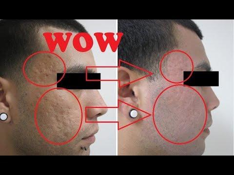 Acne Scar Removal Los Angeles - Acne Scar Treatment - Dr  Behnam