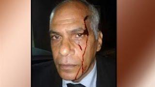 اتحاد المحامين العرب: اعتذار وزير الداخلية لم يعد له قيمة بعد اعتذار السيسي