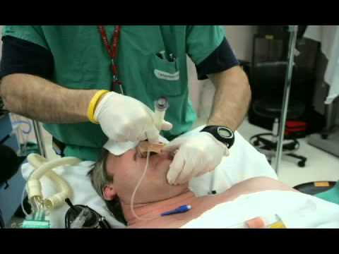 Technique of Placement of Extraglottic Devices- Laryngeal Mask Airway Classic