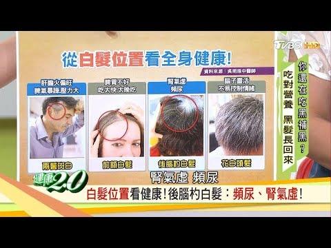 白髮突然長出來?你的白髮位置透露健康警訊! 健康2.0