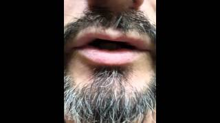 Broke tooth ( irritating tongue)