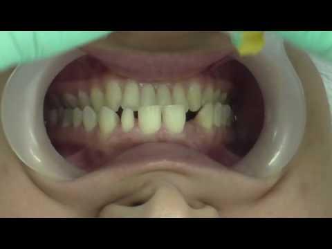 Diseño de sonrisa pereira omi dental office