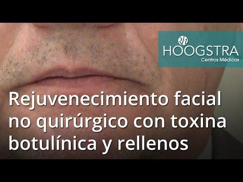 Rejuvenecimiento facial no quirúrgico con toxina botulínica y rellenos (16092)