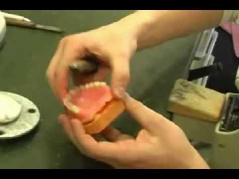 Prothesenunterfütterung - wenn die Zahnprothese wackelt