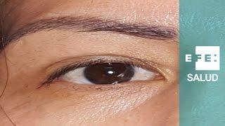 Los milagros oculoplásticos