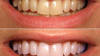 3D White Crest - Отбеливающие полоски(Полоски 3D White Crest отбеливают зубы за 7 дней. Заказать можно здесь bit.ly/smile-white., 2016-07-31T10:44:43.000Z)