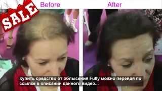 видео Елена Малышева. Почему выпадают волосы?