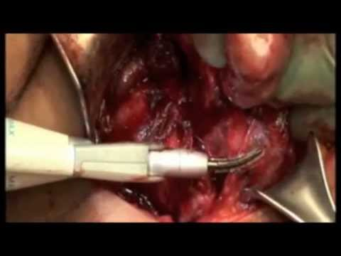 Total Thyroidectomy Dr John Chaplin Auckland New Zealand