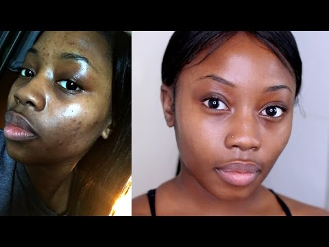 HOW I GOT RID OF MY ACNE|FAST+CHEAP& NATURAL| MORNING SKIN R