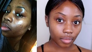 One of Lizzie Loves's most viewed videos: HOW I GOT RID OF MY ACNE|FAST+CHEAP& NATURAL| MORNING SKIN ROUTINE | LIZZIE LOVES