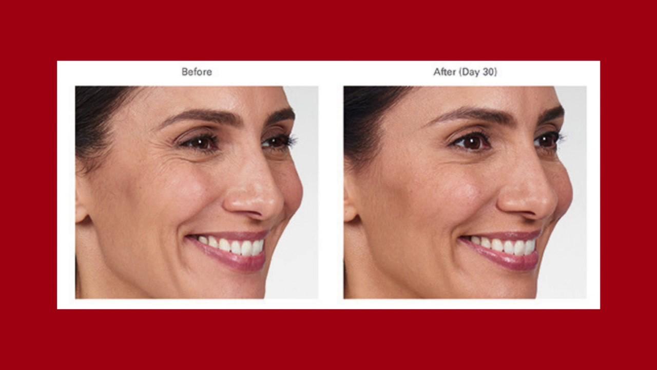 Botox Cosmetic Albuquerque | Best Wrinkle Reduction Santa Fe | Skin