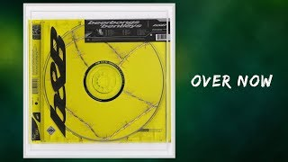 [4.38 MB] Post Malone - Over Now (Lyrics)