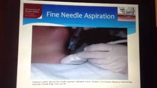 Thyroid fine needle aspiration