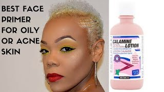 BEST FACE PRIMER FOR OILY OR ACNE PRONE SKIN (CALAMINE LOTION )