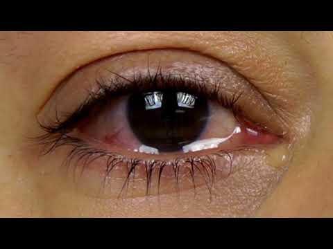 Глаз болит и жжет