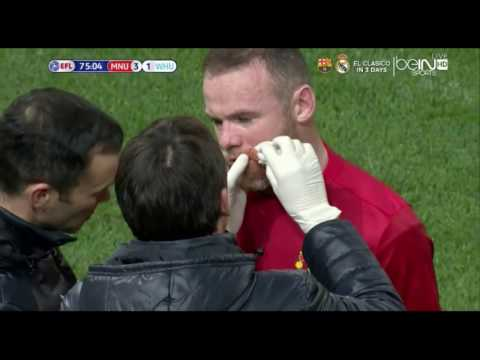 Wayne Rooney Takes Boot To The Face