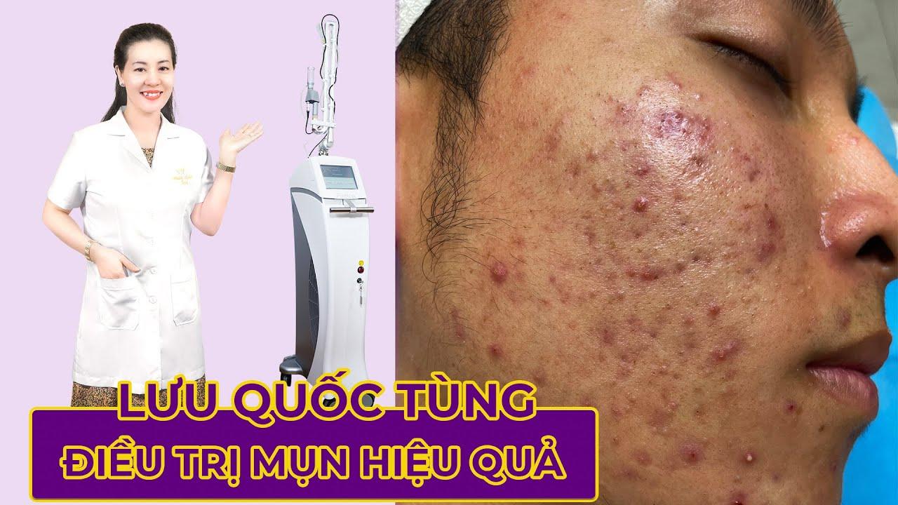 Review Điều trị mụn hiệu quả tại Hiền Vân Spa   Lưu Quốc Tùng   Acne Treatment   537