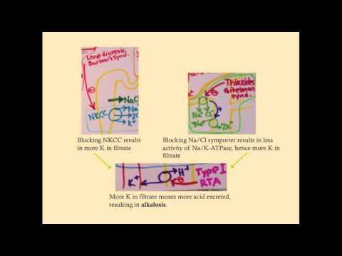 Paradoxical Aciduria Vomiting Metabolic Alkalosis Acid Base