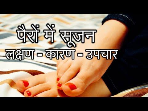 पैरों-में-सूजन-के-लक्षण---कारण---उपचार